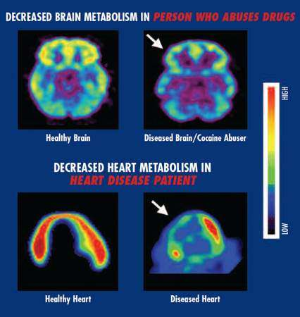 effects of drug addiction on health